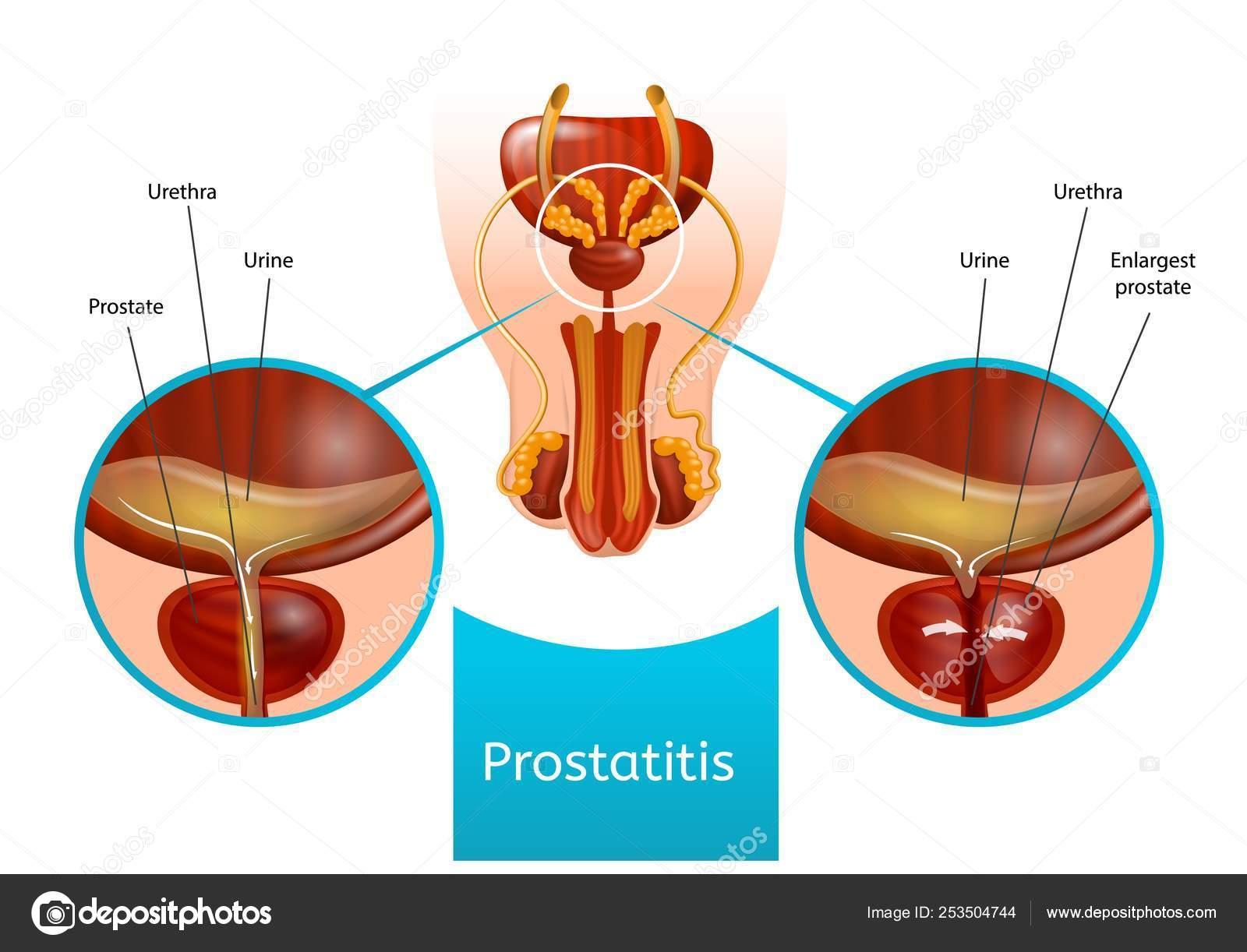 Wormwood a prosztatitis kezelésében