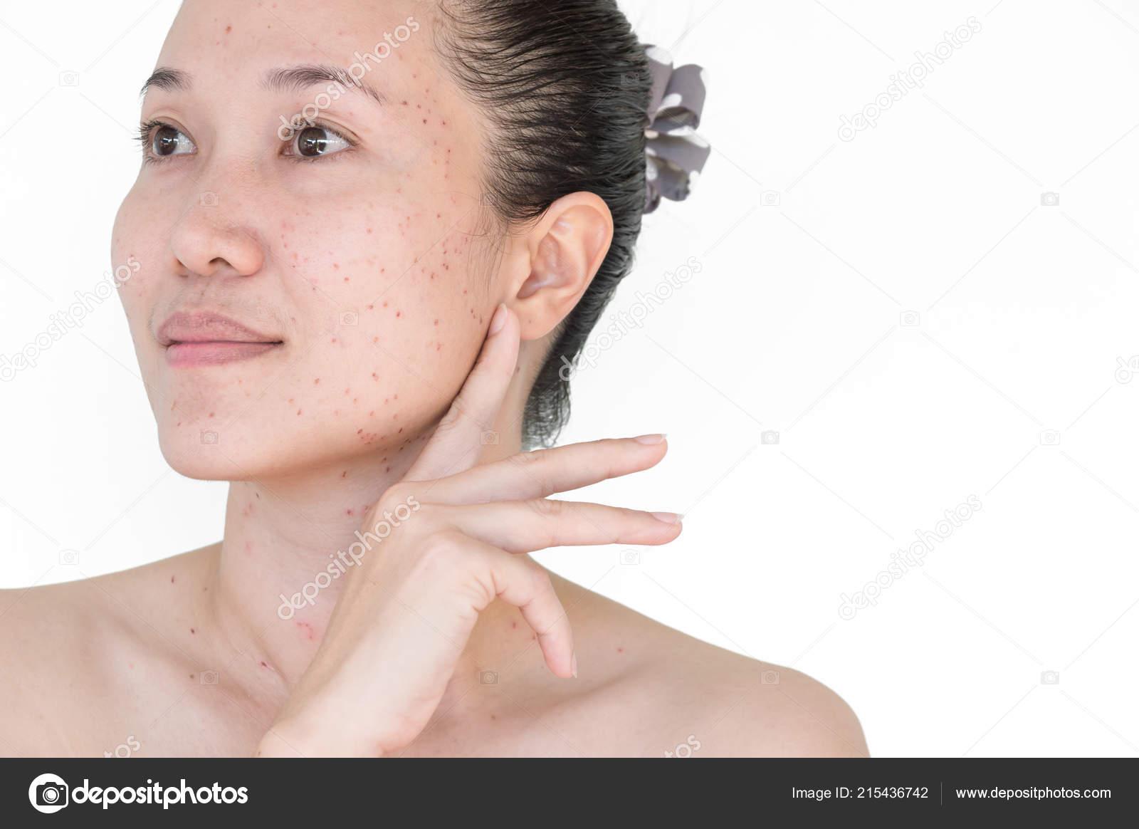 Pics: dark spots on face | Burn Spots Scabs Laser Treatment