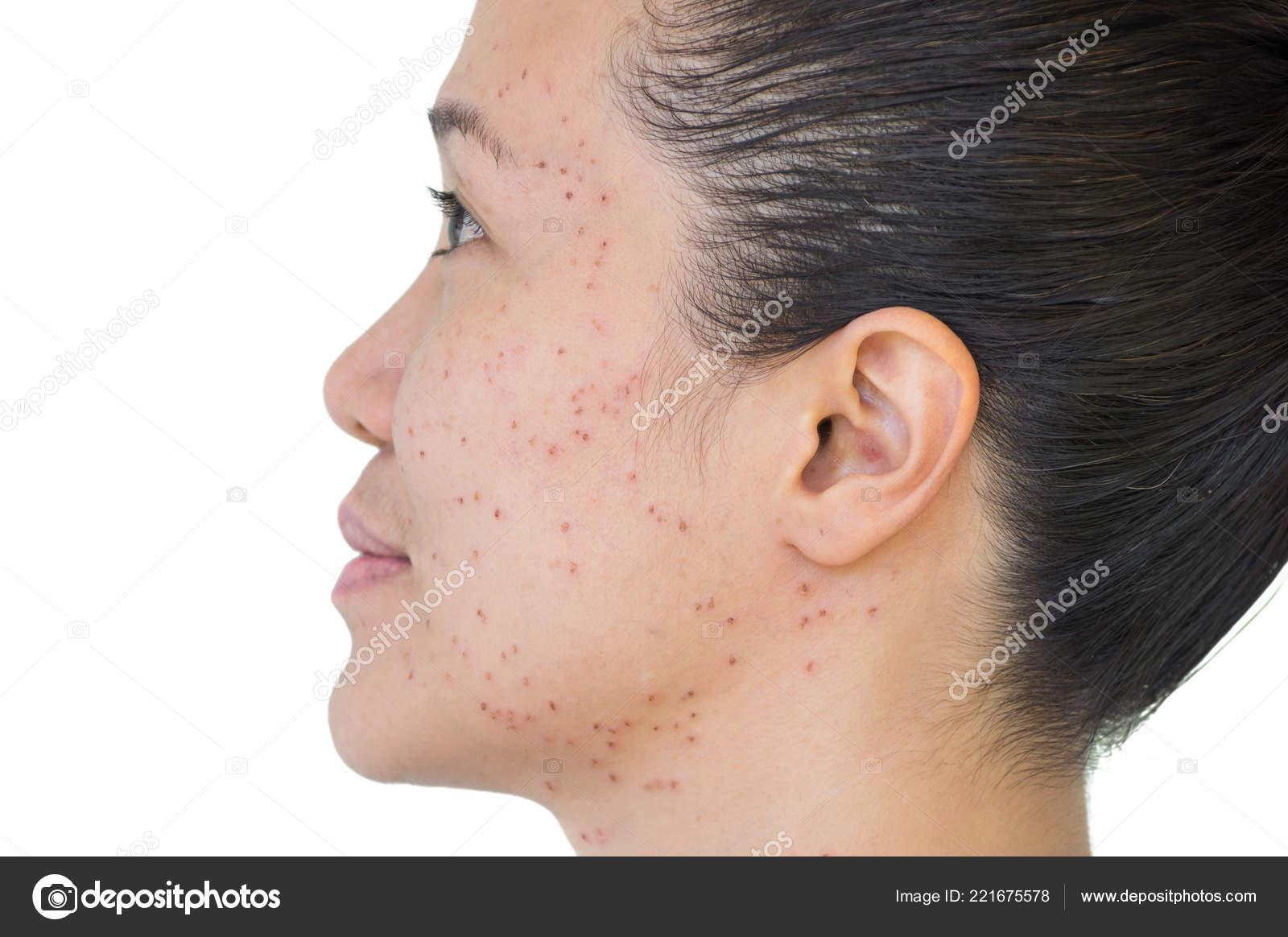 Burn Spots Scabs Laser Treatment Acne Skin Freckles Freckles