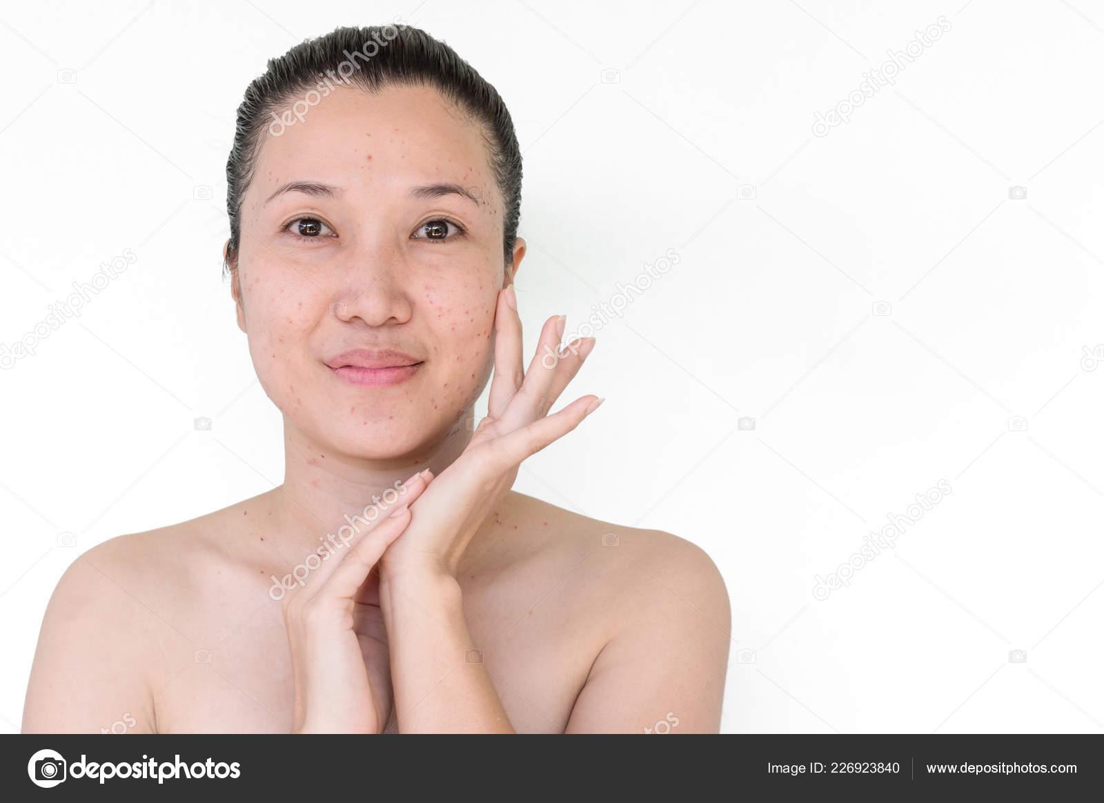 Burn Spots Scabs Laser Treatment Acne Skin Freckles Freckles Dark