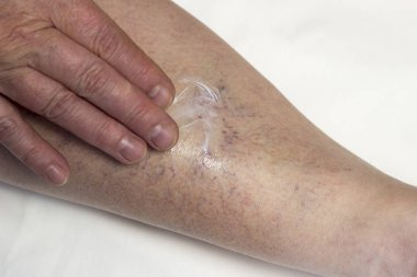 A woman is rubbing her leg with varicose veins