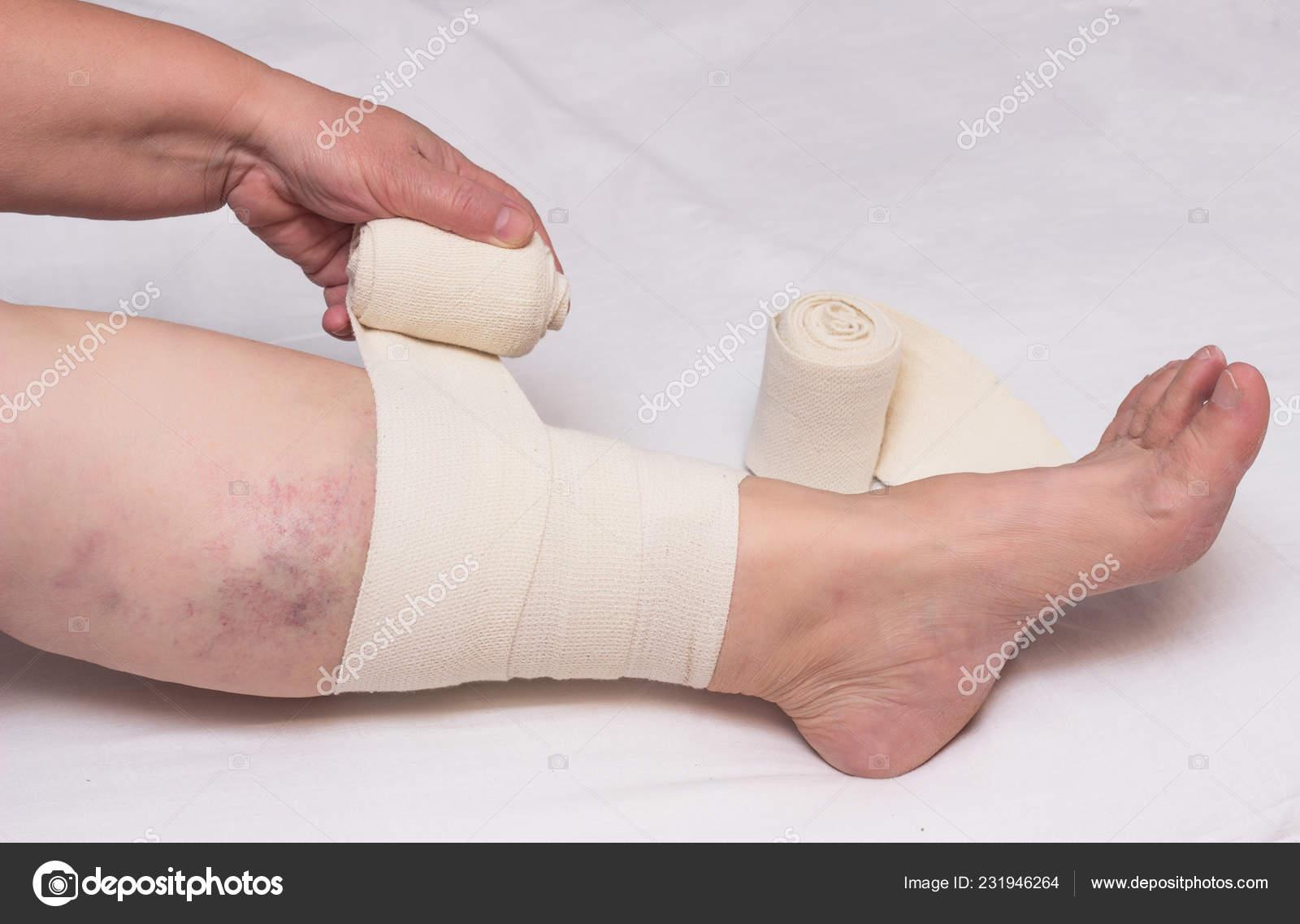varicose bandages recenzii