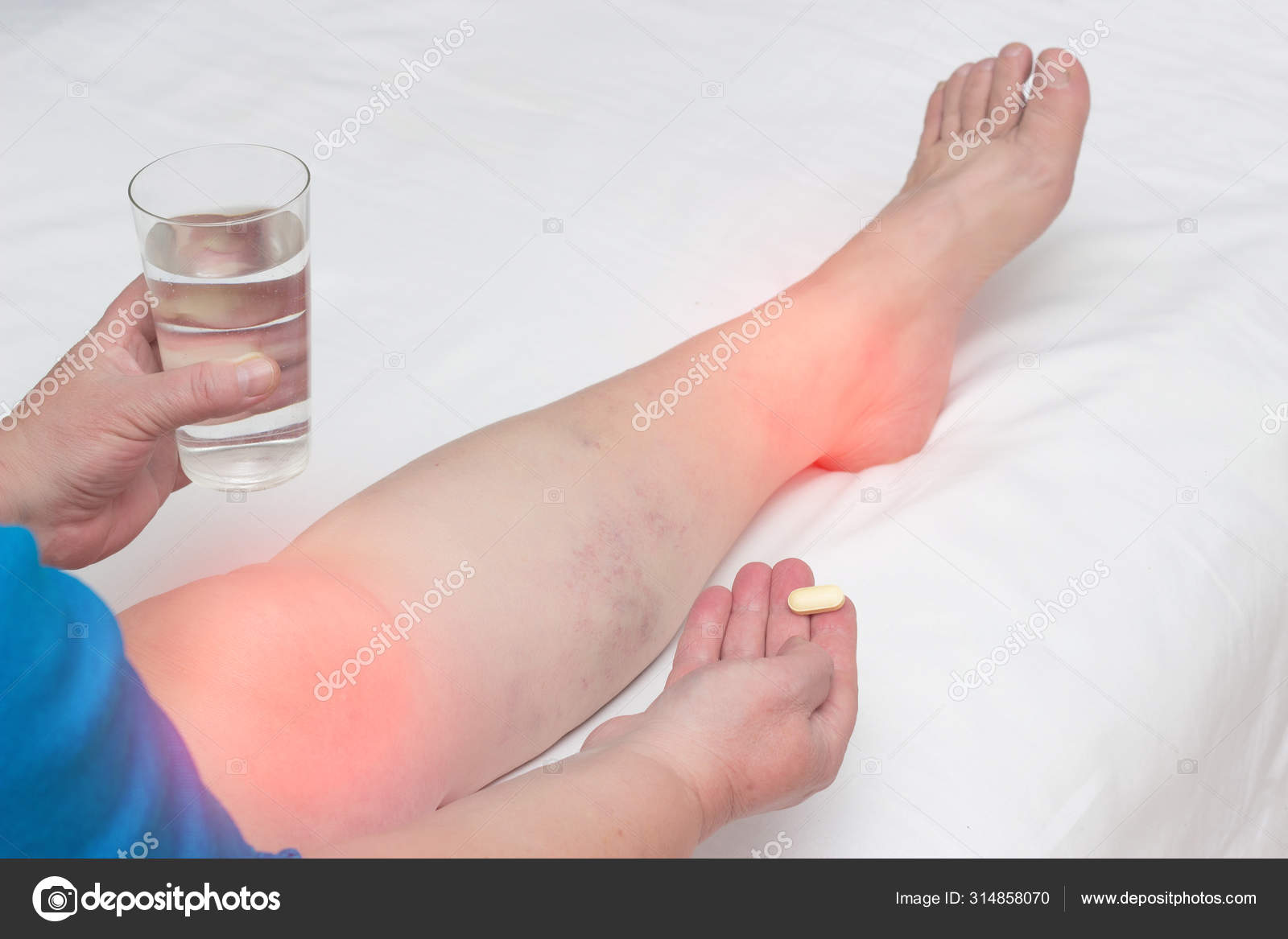artrosis a végtagok ízületeiben