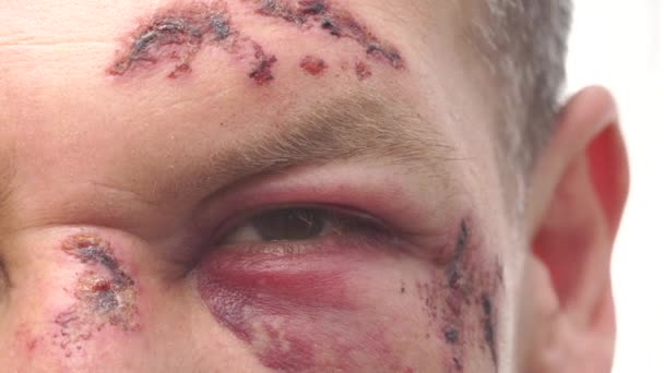 A man with real wounds, bruises and blood after the accident.  Eye close-up with hematoma