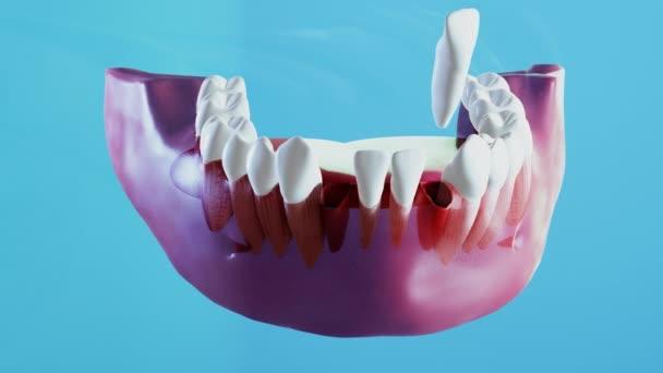 Keramische Zahnimplantation