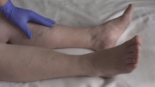 de la varicose video