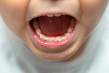 A little boy with an open mouth showing milk teeth and constantly growing teeth.