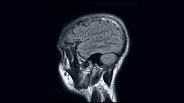 hlava, mozek, magnetická rezonance