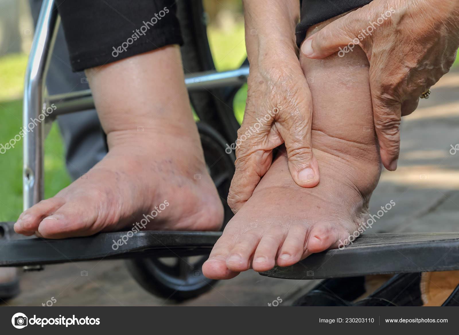 Pictures : pitting edema   Elderly Woman Swollen Feet Press