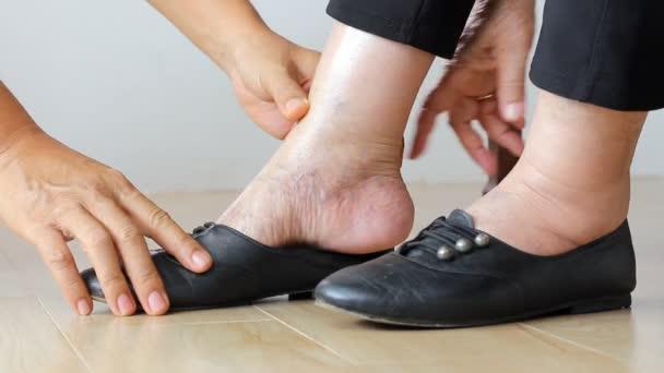 Donna anziana che mette sui pattini con giver di cura piedi gonfiata.