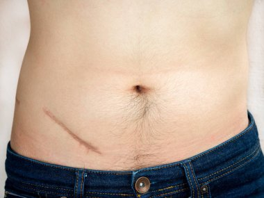 Closeup of man showing the stomach with a scar from appendicitis surgery.