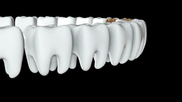 Zlatý zub v řadě bílých zubů. 3d.
