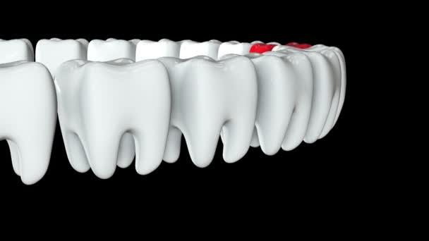 Červený zub v řadě bílých zubů. 3d.