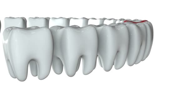 Red tooth in a row of the white teeth. 3D.