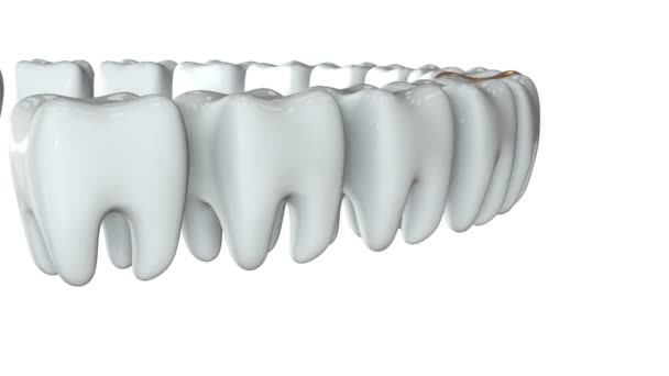 Golden tooth in a row of the white teeth. 3D.