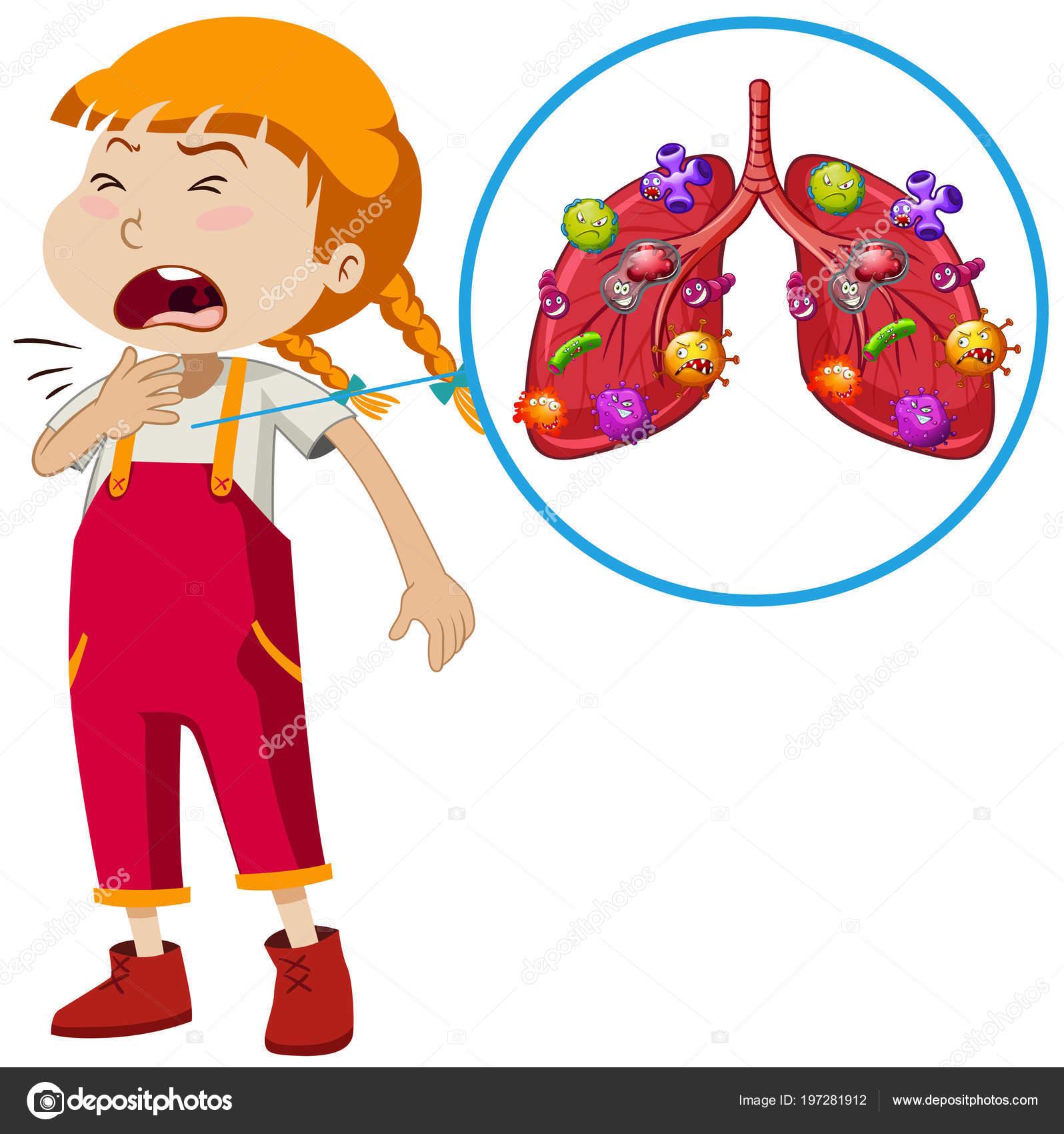 Áˆ Pneumonia Cartoon Stock Pictures Royalty Free Asthma Cartoon Images Download On Depositphotos
