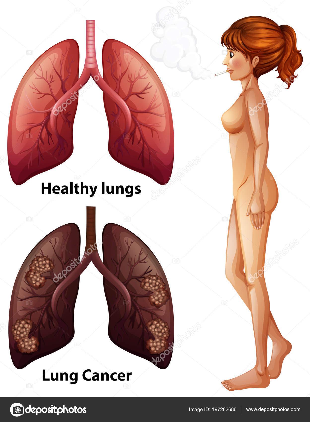 Menschliche Anatomie Lunge Des Rauchers Abbildung — Stockvektor ...