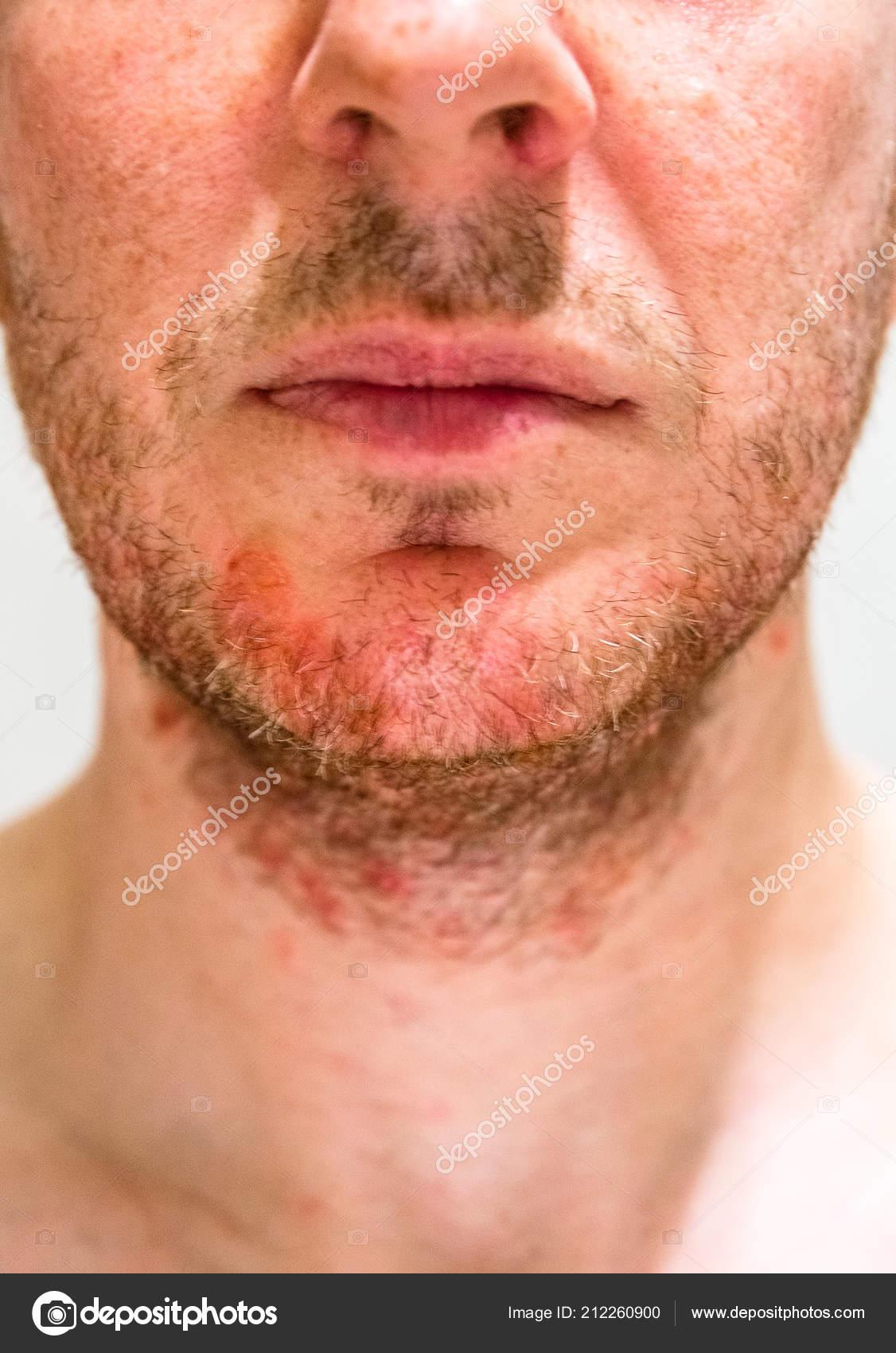 Homme souffrant de dermatite séborrhéique dans le domaine de ...