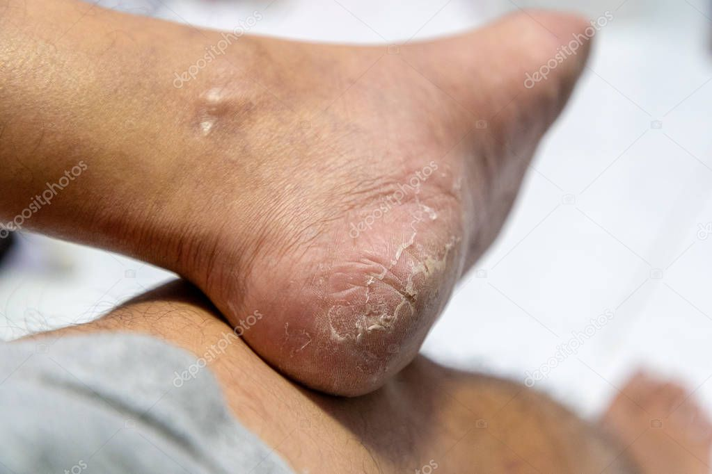 Close up Dermatitis of Heel break, Skin peeling in men on foot.
