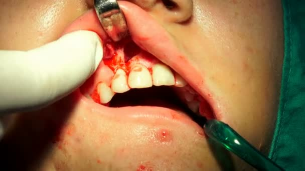 Girl at Tooth, Gum, Oral surgery, apicectomia in dark operation room