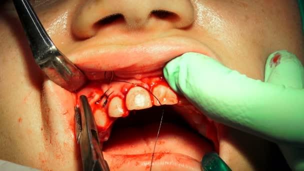 Zubař stehy ženy guma po zubní chirurgický zákrok odstranění cysty