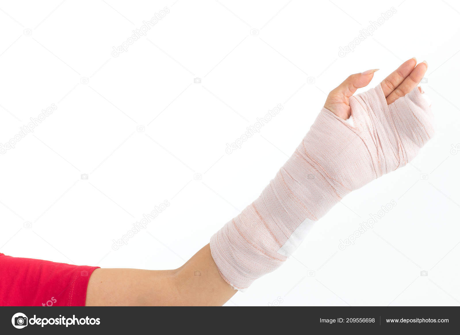 Broken Arm Left Hand Woman Plaster Cast Studio Photographed