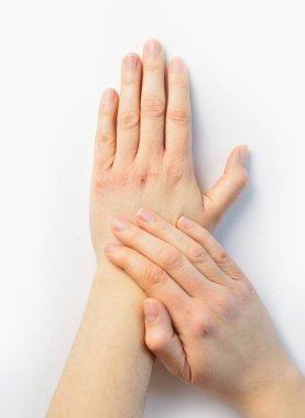 "Картина, постер, плакат, фотообои ""Женщина, проверка рука с очень сухой кожи и глубоких трещин"", артикул 206614620"