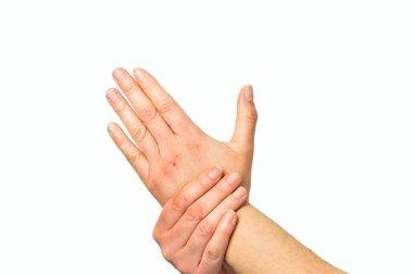 "Картина, постер, плакат, фотообои ""Женщина, проверка рука с очень сухой кожи и глубоких трещин"", артикул 206614678"