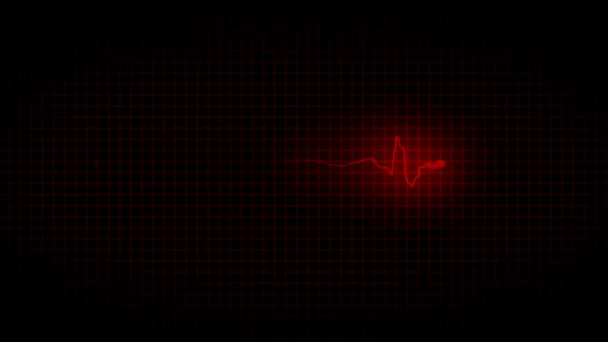 EKG cardiogram bad heart disease 32.