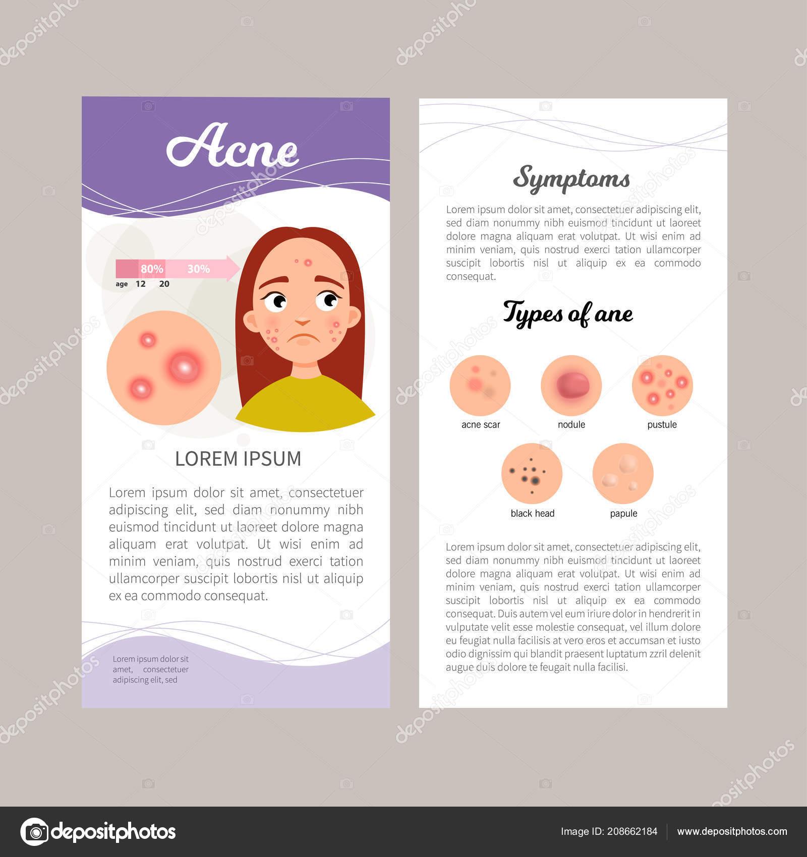 Infographics Acne Statistics Causes Treatment Disease
