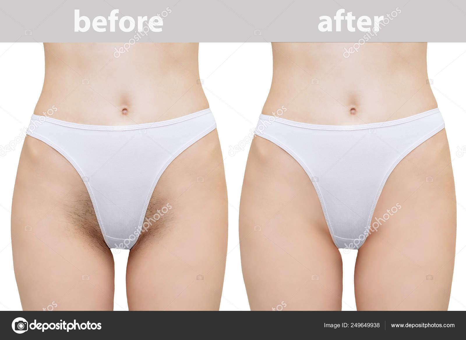 tipos de depilacion area de bikini