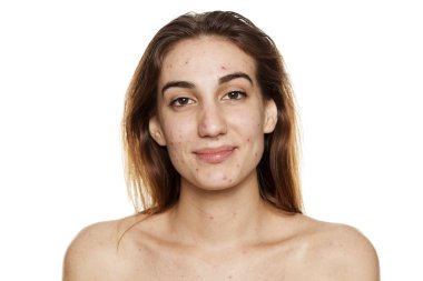 Young smiling woman with problematic skin and without makeup posing on a white background