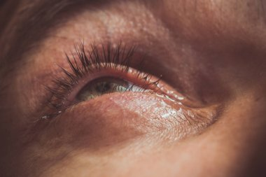 a man drips open human eye with bright red arteries drops to improve vision close up. irritation and redness of the eyeball. pupils, iris, eyelashes in macro. vision problems