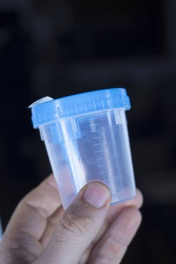 Medical urine test cup to hold patient dope testing anti drugs, sample.