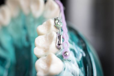 Dental metal braces teeth retainer aligners teaching orthodontics model.