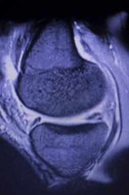 MRI knee meniscus tear scan