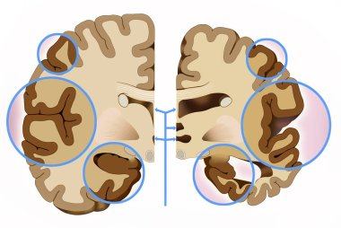 This illustration shows the comparison of two halves of the brain, a healthy half and another with Alzheimer's, in this we see that the cerebral cortex contracts, this brain reduction causes damage to the brain used to think, plan and remem