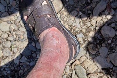 Skin irritation due to sunburn.