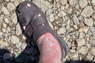 Skin burn on the foot and ankle, sunburn.