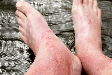 Sunburn on the skin of the foot and ankle.