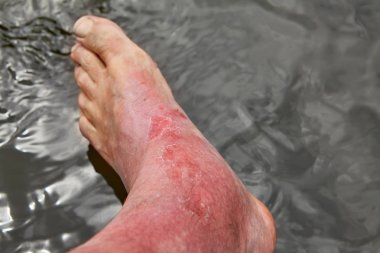 Redness and irritation of the skin after sunburn.