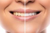 Fotografie Detailní záběr z ženských úst. Srovnání po bělení zubů