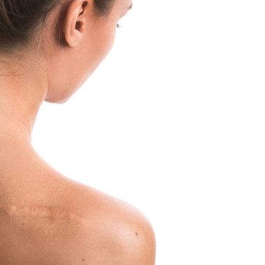 Woman with a scar on her shoulder over white background