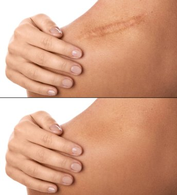 Comparision of female shoulder after scar removing procedure