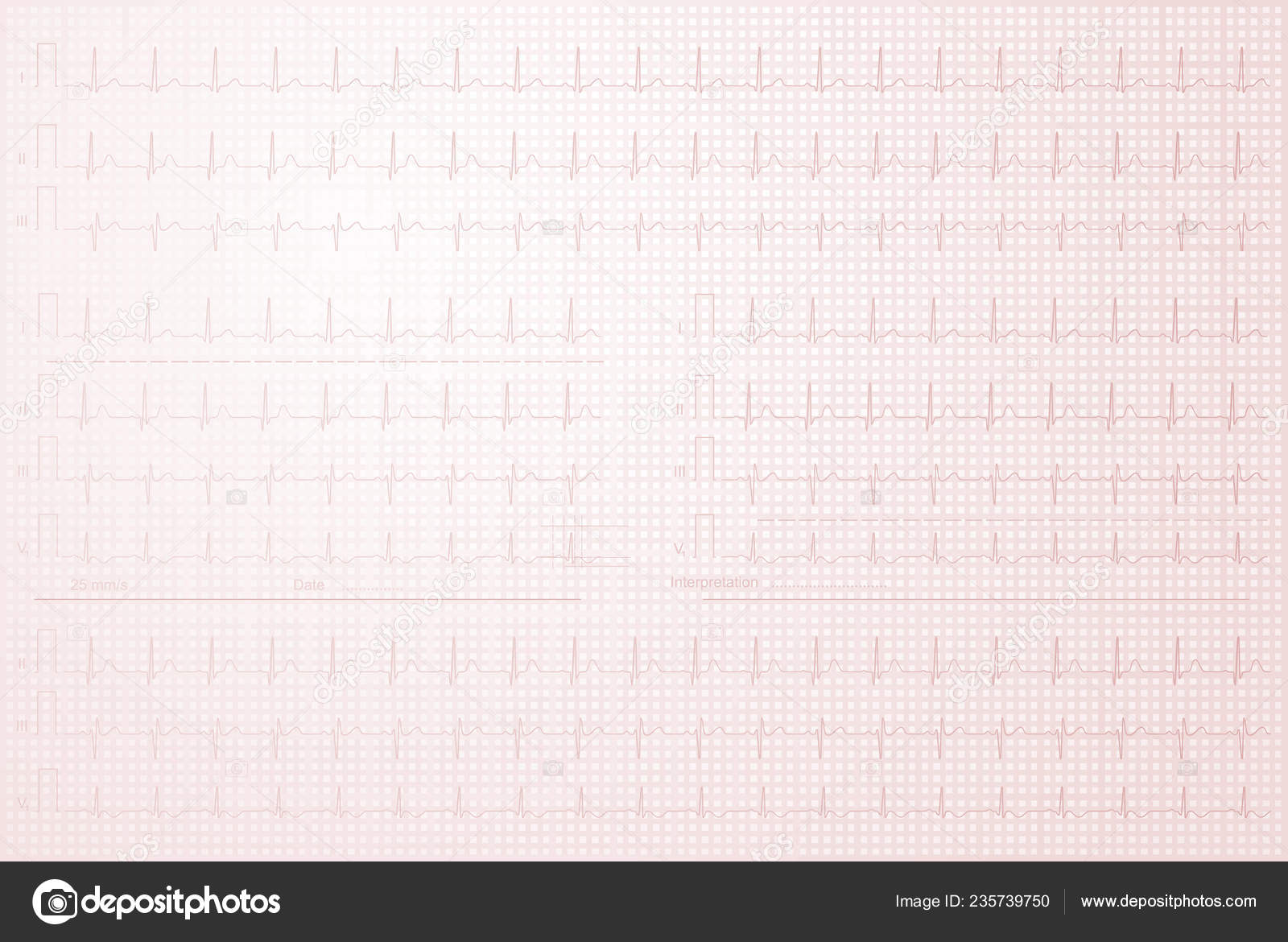 Cardiogram Lined Paper Background Stock Photo Sudok1