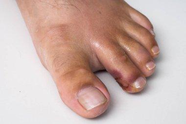Finger on the leg. Purulent finger. Wound close up. purulent wound