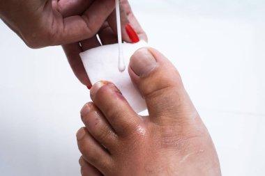 Finger on the leg. Purulent finger. Wound close up. purulent wound.
