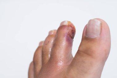 Finger on the leg. Purulent wound on the leg. Eczema. Dermatitis. Psoriasis.
