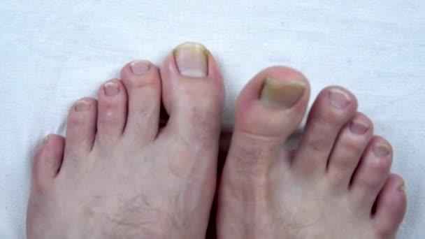 Velké nehty na nohou s plísní. Ten muž má žluté nehty na nohou. Dlouho ti nestříhal nehty.