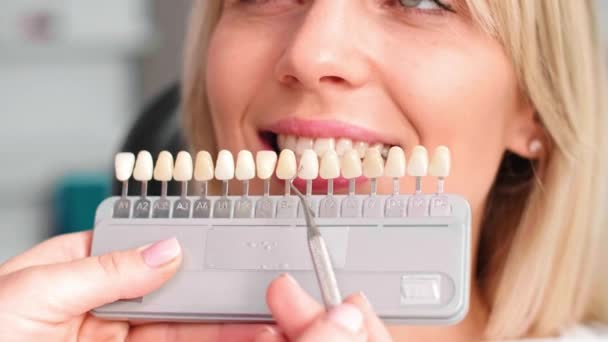 Part of dentist choosing color teeth from palette